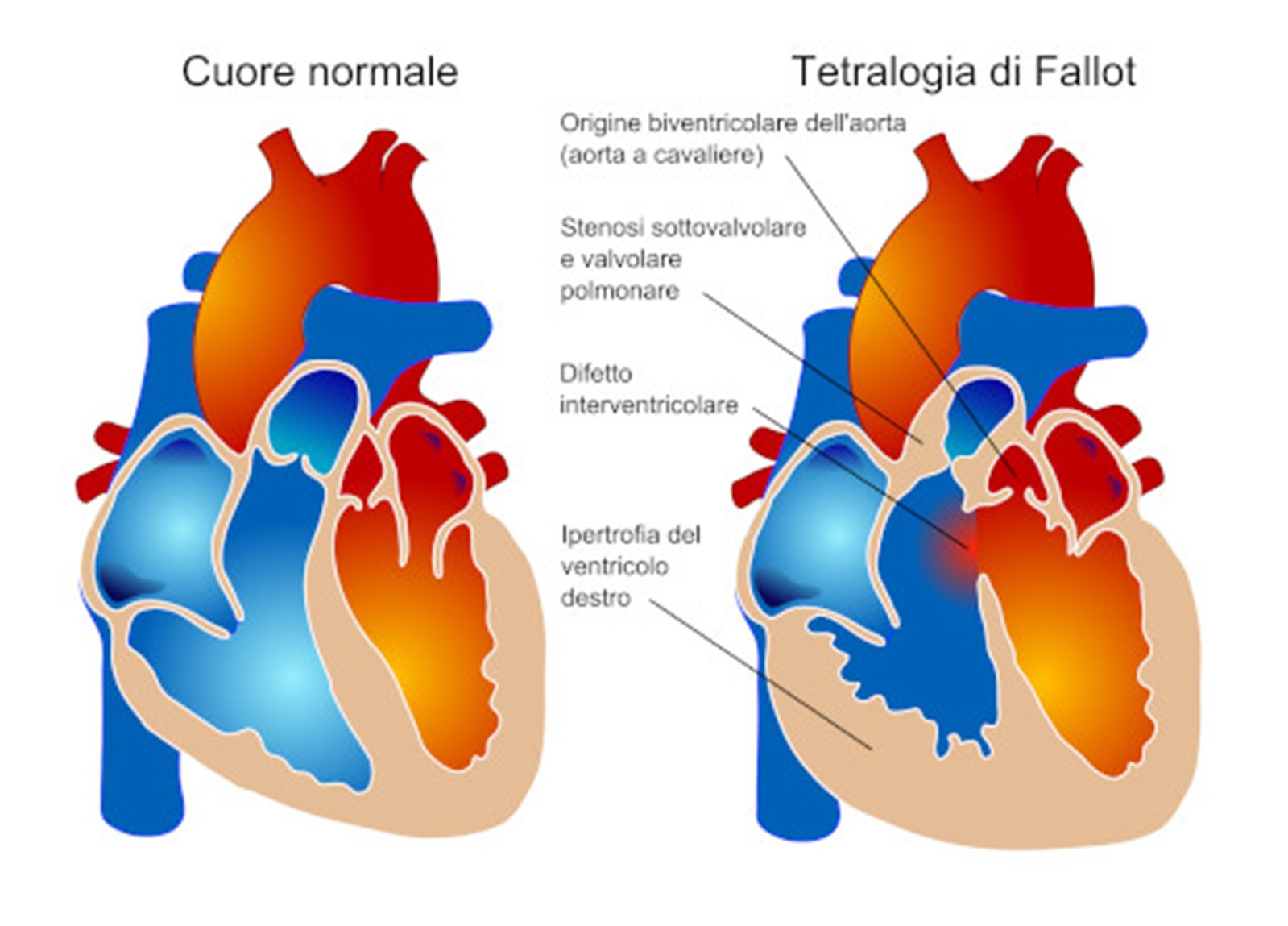 cardiochirurgia1